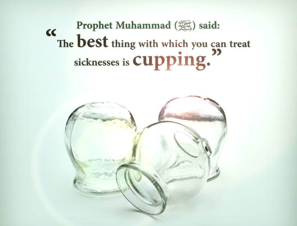 4 on cupping hijama points