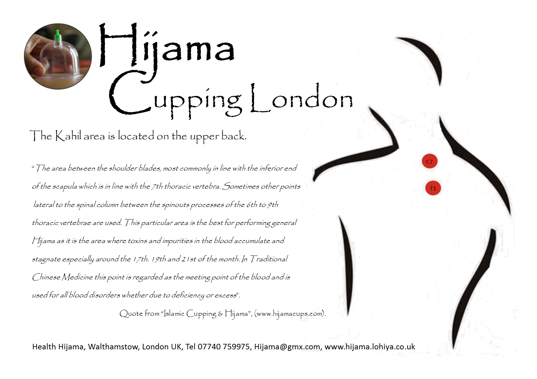 The Hijama Kahil Points On The Upper Back