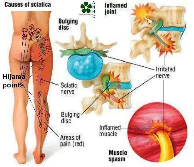 Posterior Thigh Pain Back  Sportsinjuryclinicnet