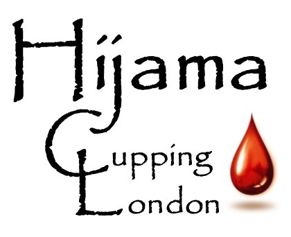 Hijama Cupping London