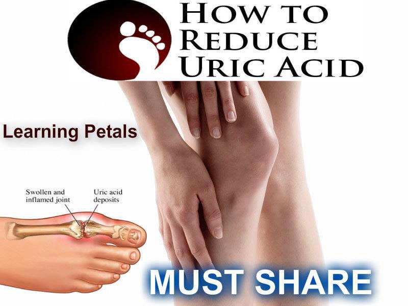 Uric Acid / Gout - Hijama Cupping London